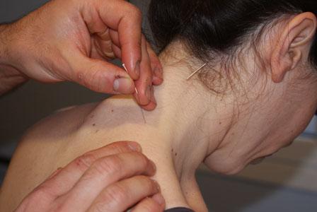acupuntura en el cuello