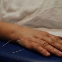 acupuntura en las manos