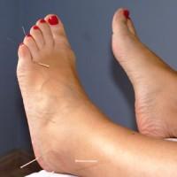 acupuntura en los pies